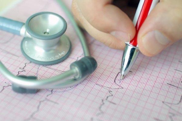 Синусовая тахикардия - симптомы, лечение, причины, экг