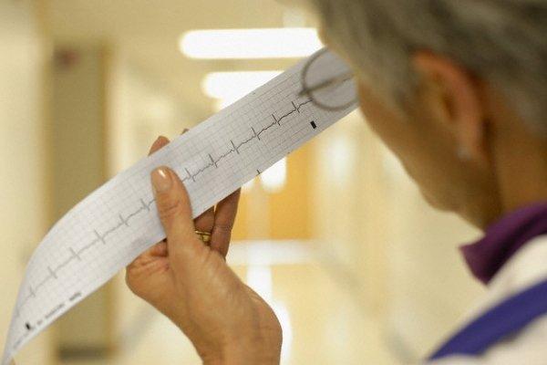 Синусовая аритмия сердца - чем опасна, что это такое, лечение, препараты, что делать?
