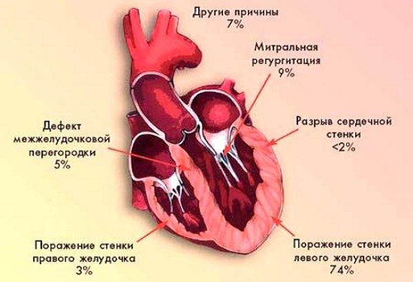 Причины кардиогенного шока