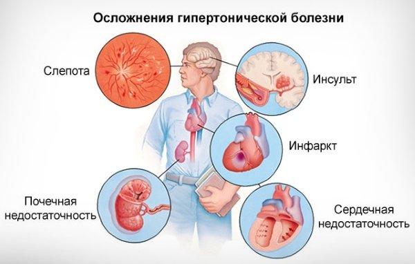 Изображение - Чем грозит повышенное давление у человека 2rip