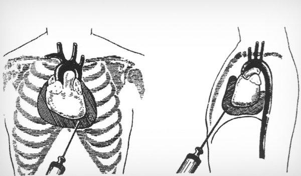 Плевральная пункция