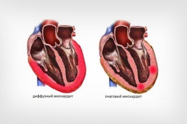 Очаговый и диффузный миокардит
