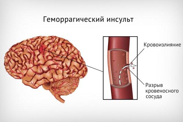 1. Геморрагический инсульт