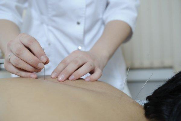 Иглоукалывание после инсульта
