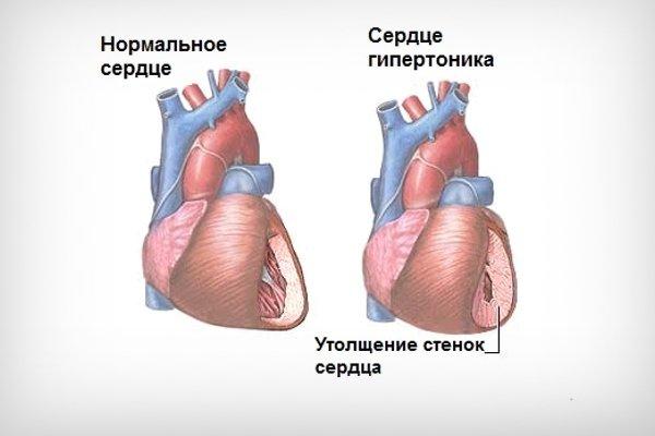 Сердце при гипертонии