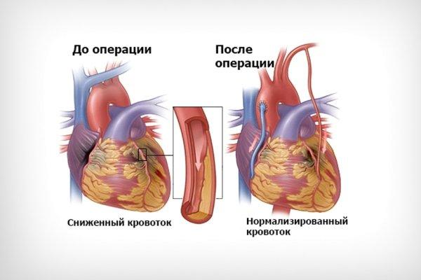 состояние после инфаркта миокарда