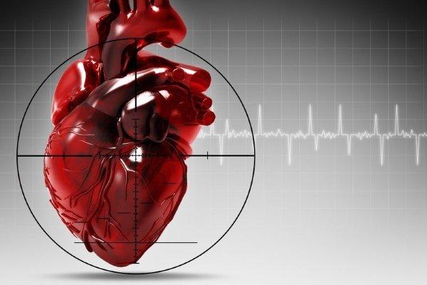 Стадии развития инфаркта