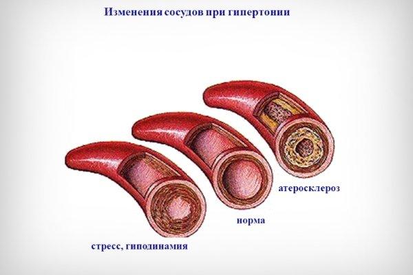 Сосуды при гипертонии