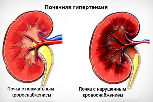 Почки при гипертонии