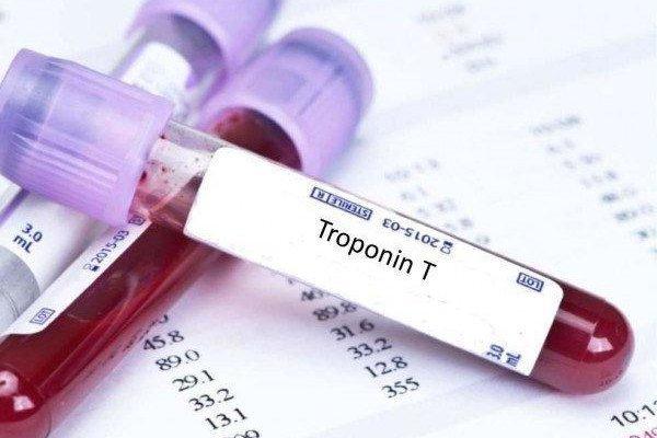Тест на тропонин