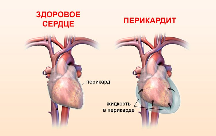 Перикардит: классификация, симптомы, лечение, прогноз