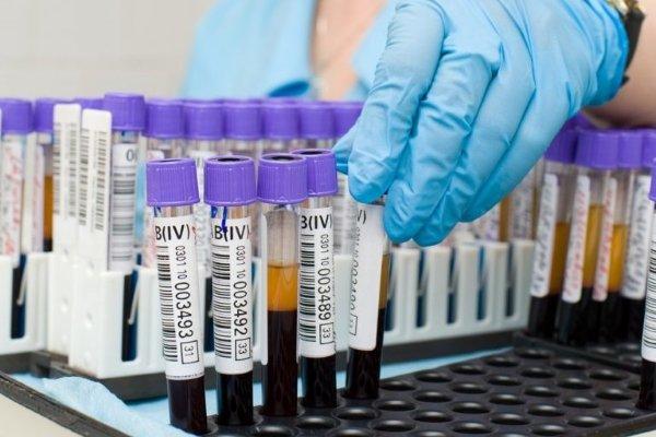 Анализ крови на ферменты при инфаркте