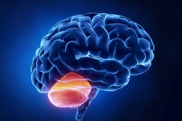 Мозжечковый инсульт