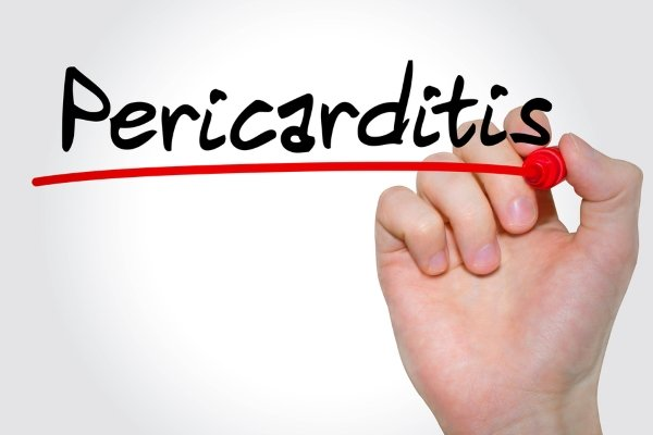 Перикардит после инфаркта