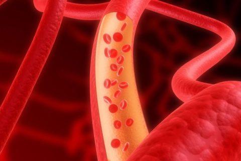 Геморрагический инфаркт