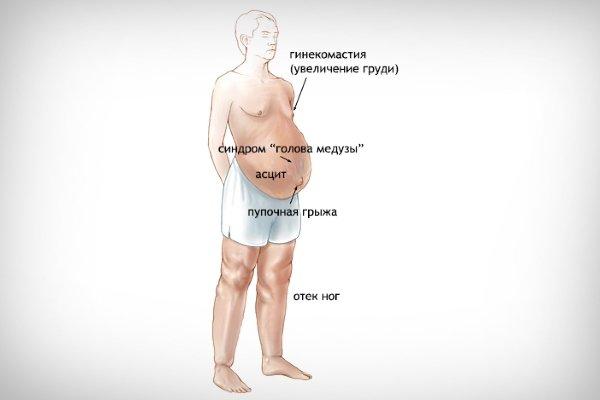 Симптомы портальной гипертензии