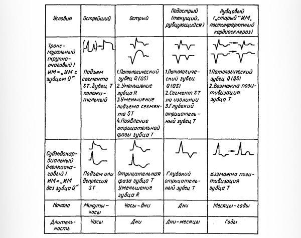 ЭКГ на разных стадиях инфаркта