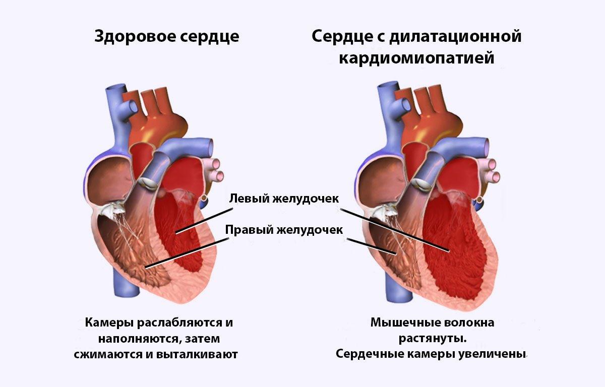 Кардиопатия у взрослых: разновидности, симптоматика и лечение