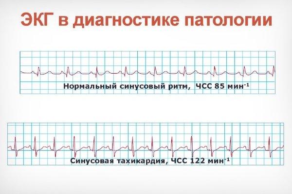 ЭКГ в норме и при тахикардии