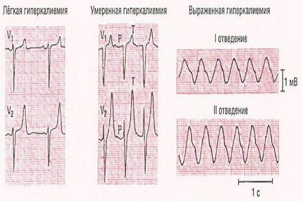 Гиперкалиемическая брадикардия