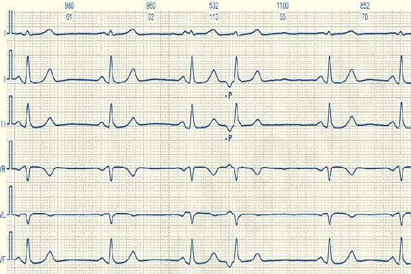 Электрокардиограмма с Р-зубцом отрицательного типа перед желудочковым комплексом