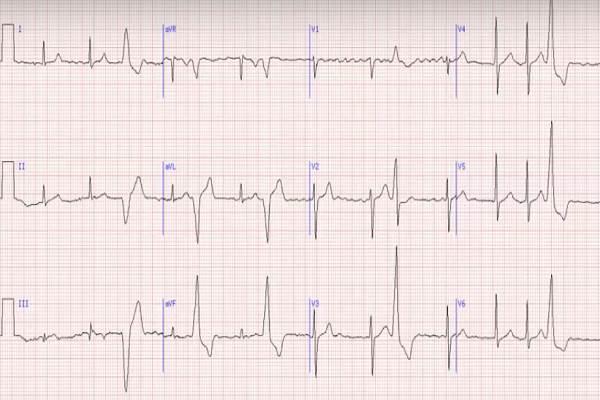 ЭКГ с деформированным и расширенным желудочковым комплексом