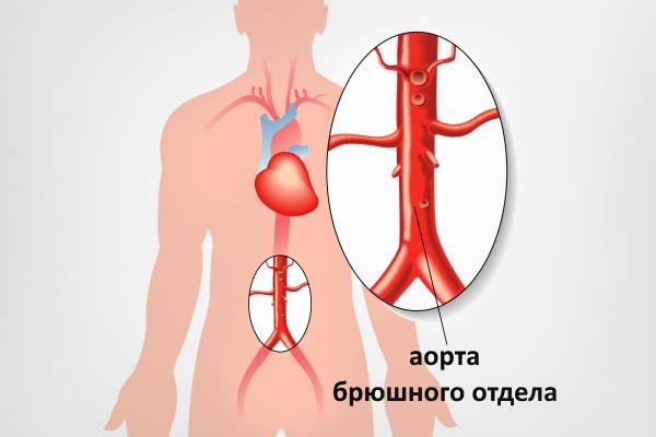 Аорта брюшного отдела