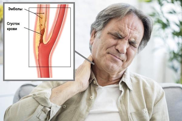 Атеросклероз сосудов шеи - симптомы и лечение
