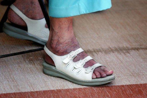 Стенозирующий атеросклероз ноги