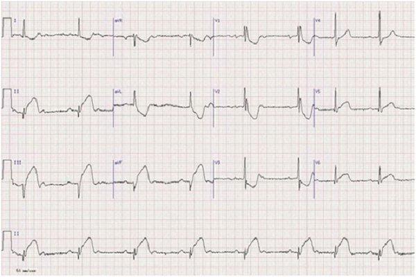 Повреждение задней стенки сердца