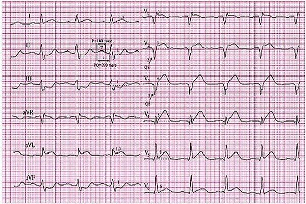 Повреждение передней стенки сердца