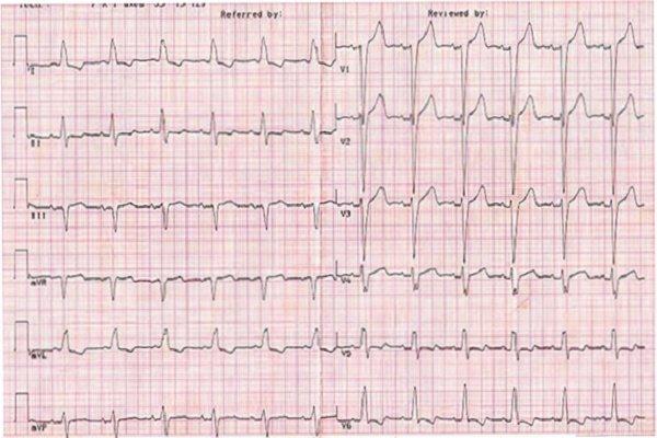 Нетипичные инфаркты