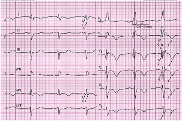 Q-инфаркт межжелудочковой перегородки