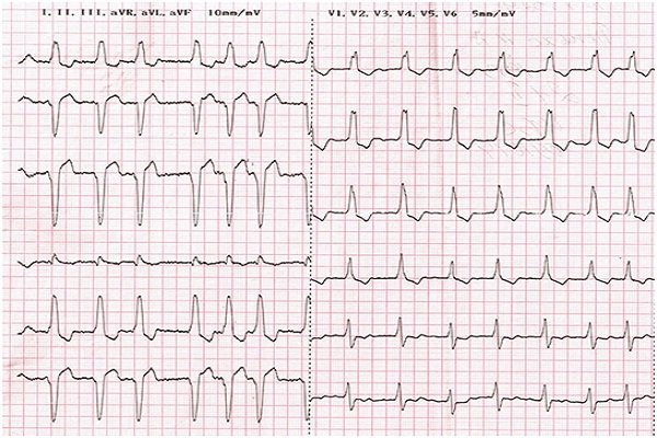 Комбинированный инфаркт
