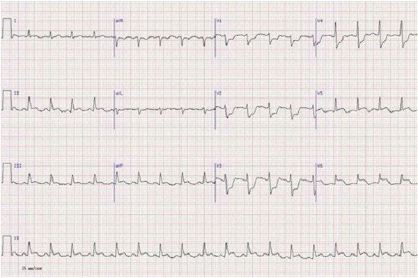 Боковой инфаркт