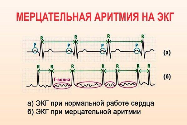 ЭКГ в норме и при мерцательной аритмии