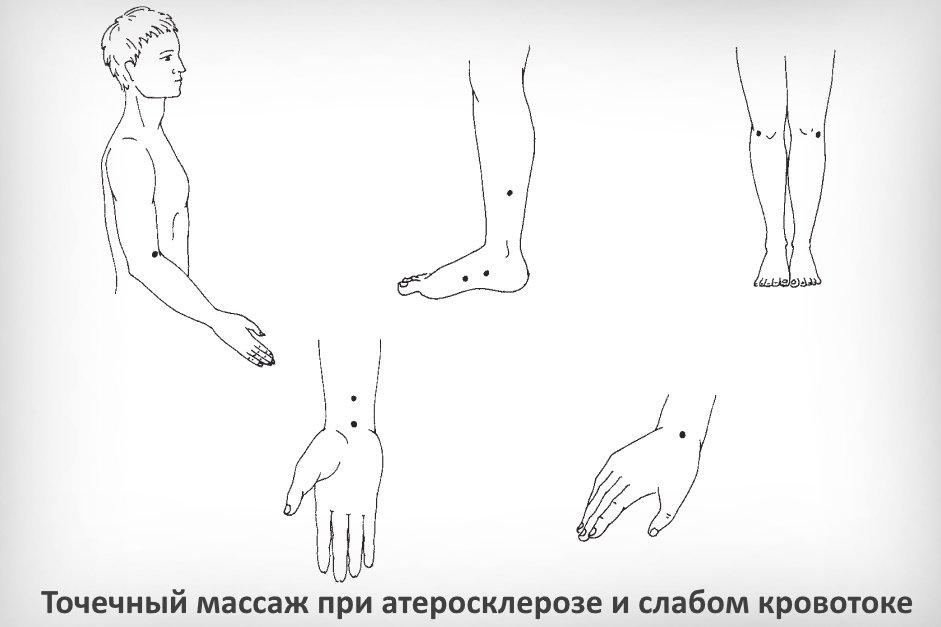 Точечный массаж при атеросклерозе и слабом кровотоке