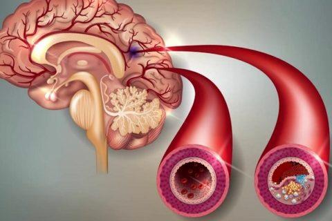 Отложение бляшек холестерина в сосудах головного мозга